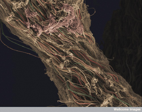 Electron micrograph of tissue from human knee