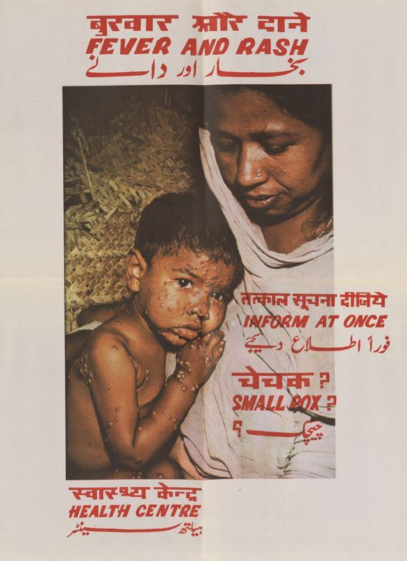 Fever and rash poster