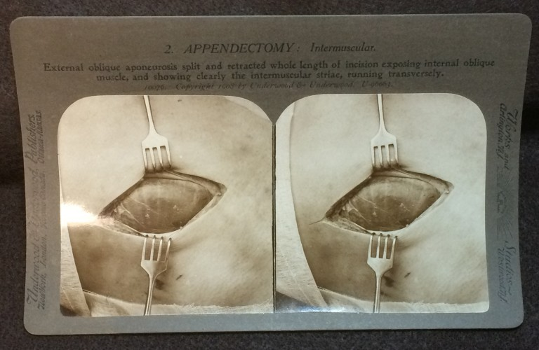 One of 35 stereoscopic cards from  Frank Hartley & Alfred Swaine Taylor. Operative Surgery through the Stereoscope. Appendectomy (New York & London: Underwood & Underwood, ca. 1908)
